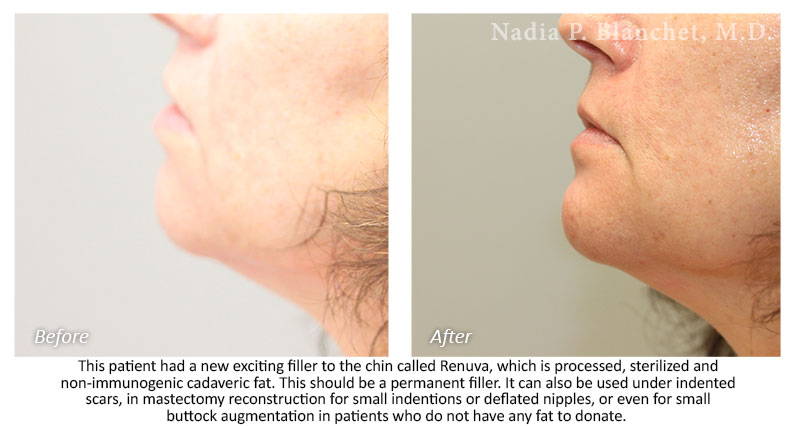 Injectables Gallery - Nadia P  Blanchet, M D
